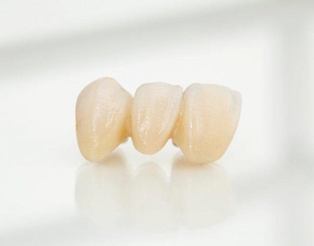 Zahnersatz auf höchsten Niveau: vollkeramische Zahnbrücke