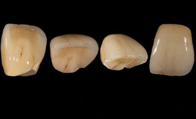 Unsere Vollkeramikkronen und Keramikinlays sind dem natürlichen Zahn in Form, Größe und Farbe nachempfunden