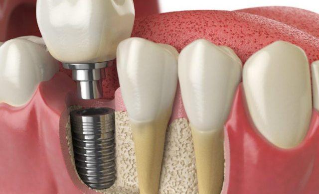 Implantatgetragene Kronen sehen natürlichen Zähnen zu Verwechseln ähnlich.