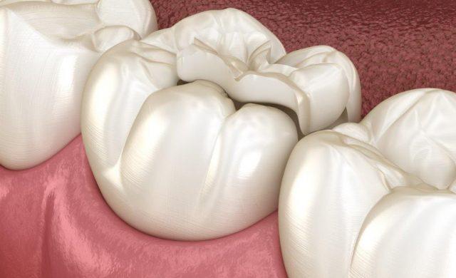 Keramikinlays und weiße Füllungen made in Bad Honnef geben behandelten Zähnen wieder Halt.