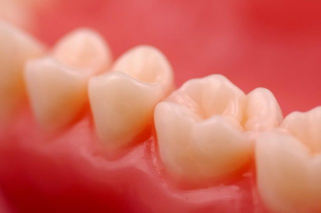 Weiße Füllungen bestehen aus einem speziellen Kunststoffgemisch. Weitere Bestandteile sind Quarz- und Glaspartikel.