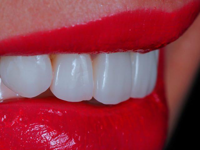Zahnästhetik in Bad Honnef bei Bonn: Ein unwiderstehliches Lächeln dank Veneers