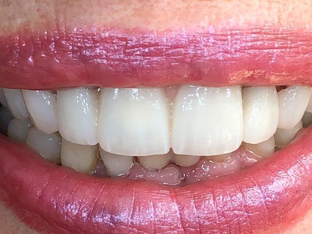 Eine Zahnbrücke aus Keramik hilft, die Mundästhetik wiederherzustellen.