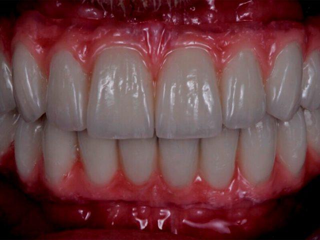 Herausnehmbare Brücken auf Implantaten lassen sich besonders leicht reinigen.