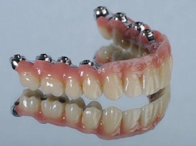 Der beste Zahnersatz ist der, der nicht als solcher auffällt. Unsere implantatgetragenen Brücken stehen natürlichen Zahnreihen in nichts nach - weder ästhetisch noch funktionell.