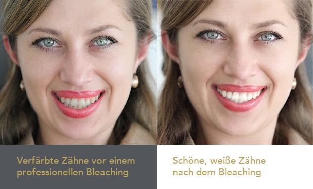 Bleaching in Bad Honnef bei Bonn: Zahnaufhellung um mehrere Nuancen nach nur einer Behandlung.