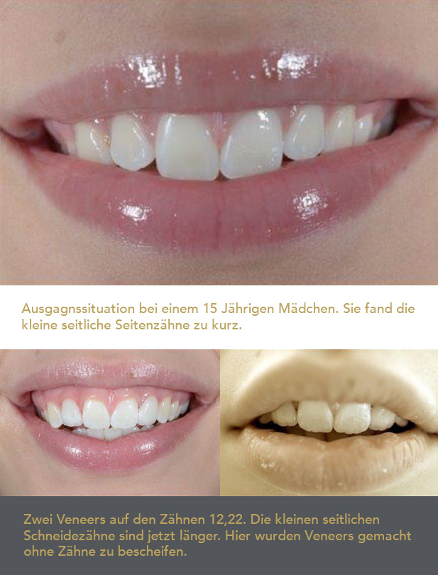 Veneers-bad-honnef-2